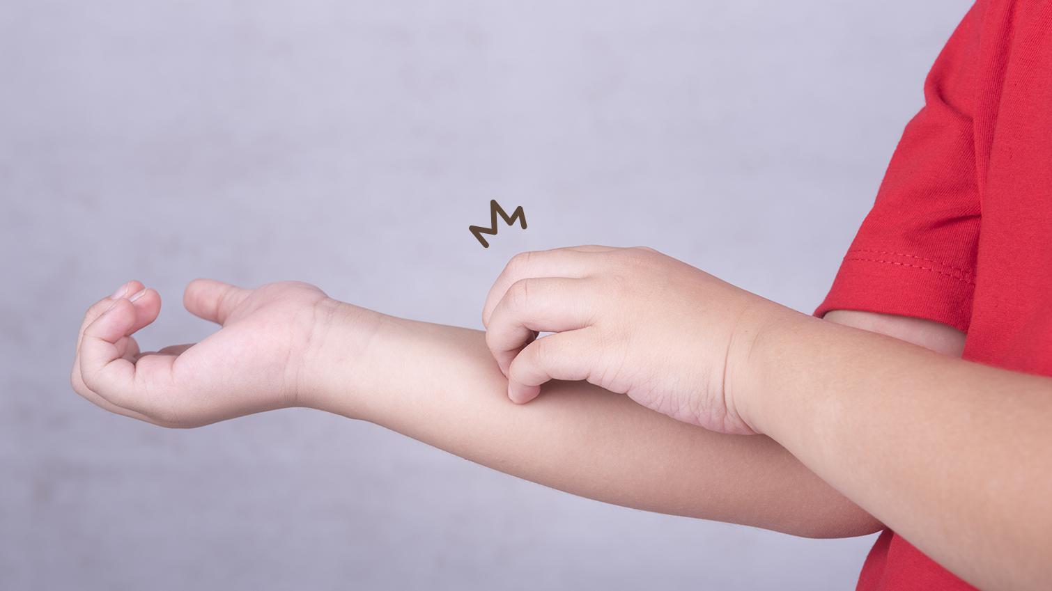 4 Penyakit Kulit Pada Bayi yang Umum Terjadi